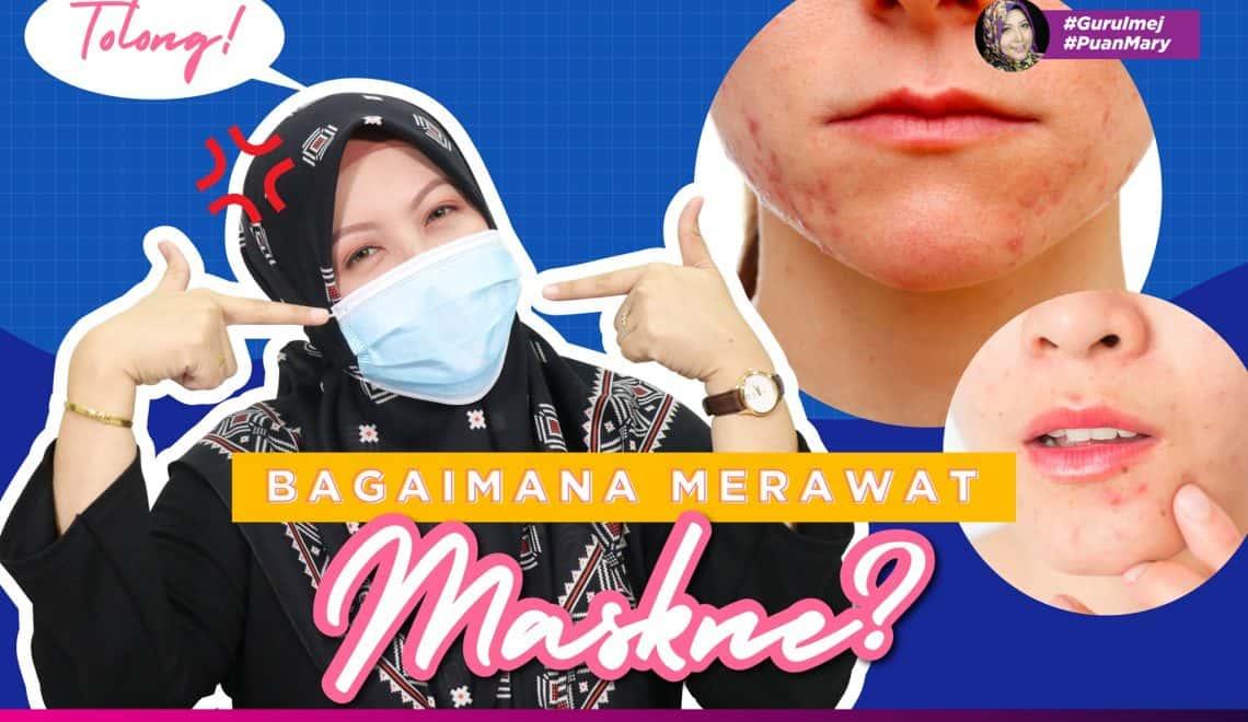 Cara Menghilangkan Jerawat Yang Disebabkan Mask (Mask Acne)